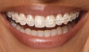 clear-tooth-coloured-braces-barrington